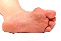 How to Tell If You've Developed Gout