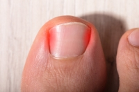 Caring for Your Child's Ingrown Toenail